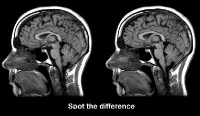 Гомосексуальный мозг