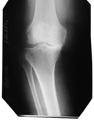 ренгенограмма, деформирующий артроз коленного сустава