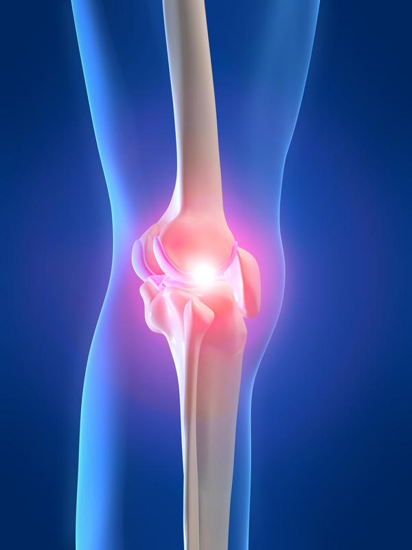 сустав, экзостоз, остеохондромы, опухоль, рост, образование