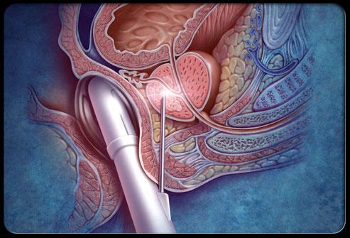 Лечение рака простаты ультразвуком - Лечение потнеции