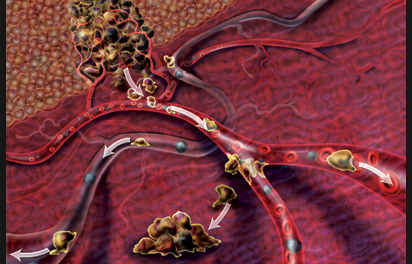Ученые обнаружили новый механизм, который способствует распространению раковых клеток