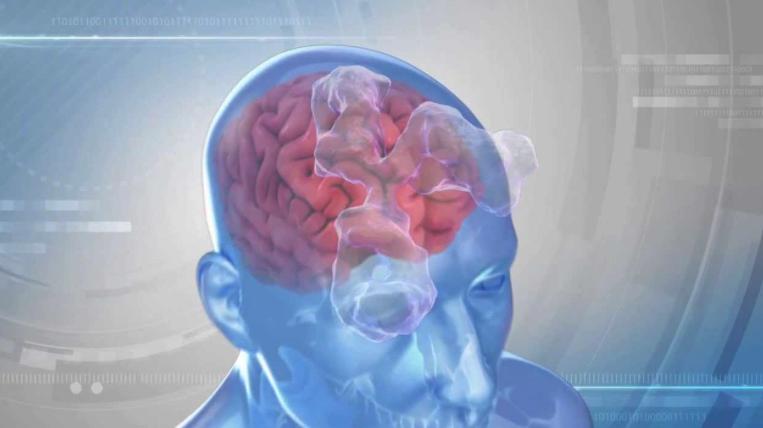 психоз, мозг