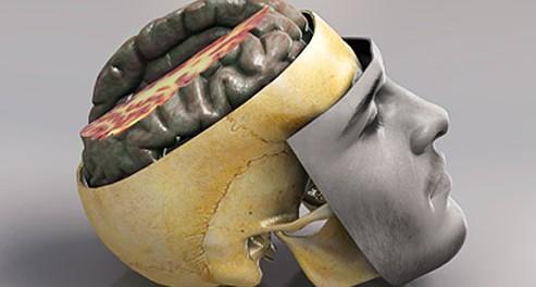 ЧМТ, черепно-мозговая травма, старение мозга