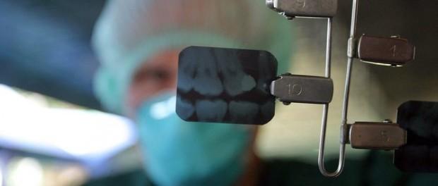 рентген, зуб, менингиома, рак головного мозга