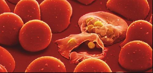 Устойчивая форма малярии может привести к глобальной угрозе