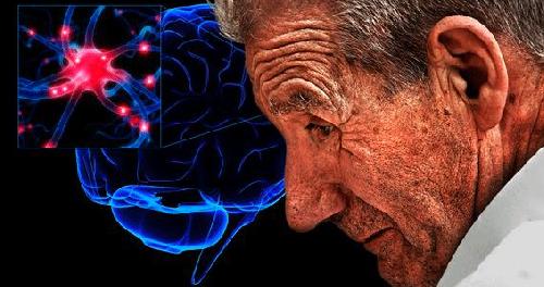 Ученые работают над препаратом, который замедлит развитие болезни Паркинсона