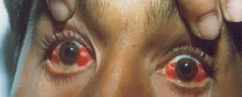 Поражение органов дыхания при гемморагической лихорадки с почечным синдромом