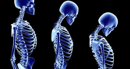 остеопороз, женщины