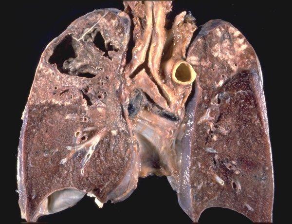 туберкулез, смертность