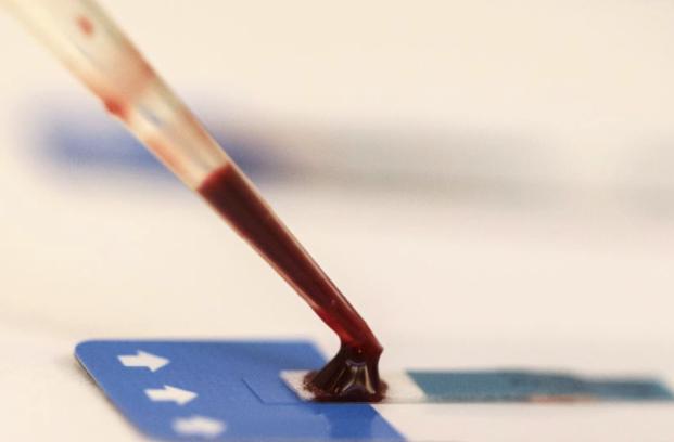 ВИЧ, диагностический прибор