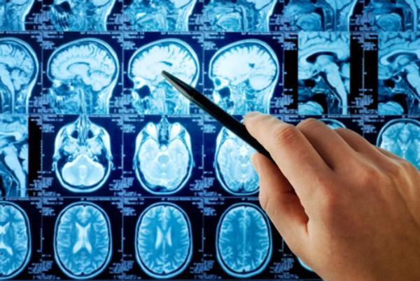Стресс и гиперактивность гипоталамо-гипофизарно-надпоченчииковой системы у пациентов с болезнью Альцгеймера