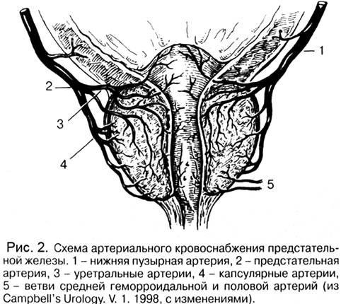 Патологическая анатомия рак предстательной железы