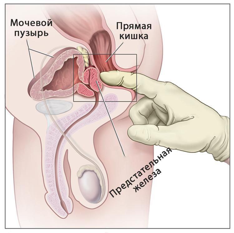 Пальцевое ректальное исследование при раке предстательной железы