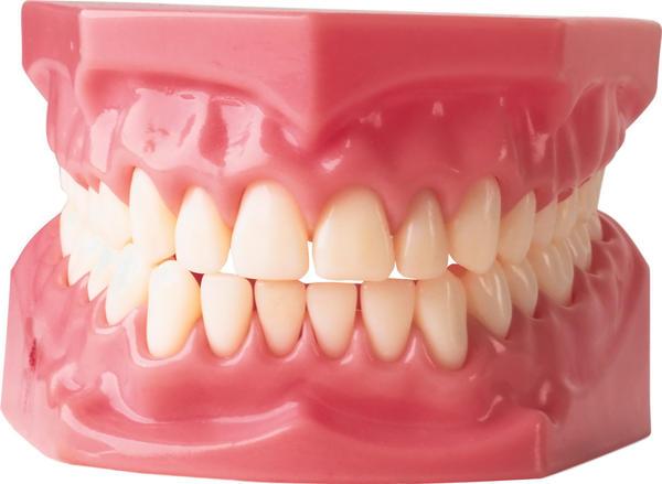 стоматология, герпетический стоматит