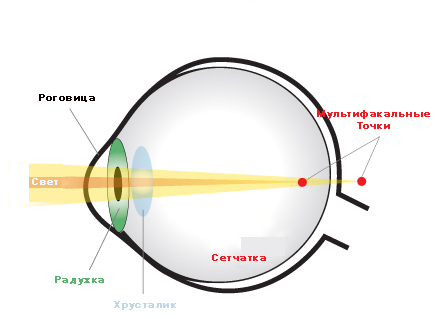 astigmatism ophthalmology and light sensitive surface The light sensitive surface at the back of the eye eye discomfort and headaches astigmatism frequently occurs with other vision conditions like.