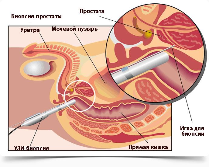 рак предстательной железы, биопсия простаты,