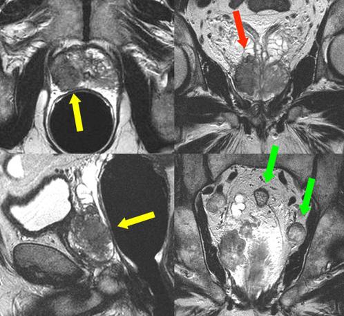 МРТ, рак предстательной железы