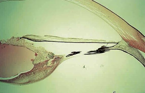 синдром персистирующего гиперпластического стекловидного тела, врожденная катаракта