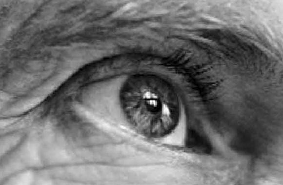 старение глаз