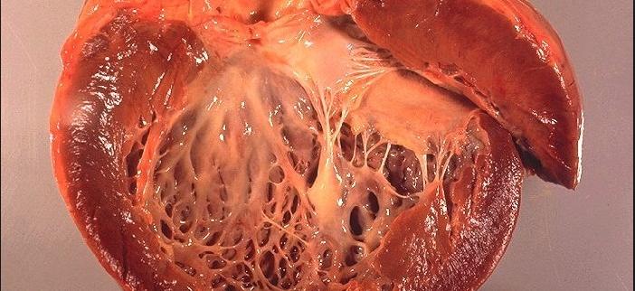 ожирение, сердце