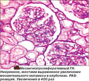 Мезангиокапиллярный гломерулонефрит