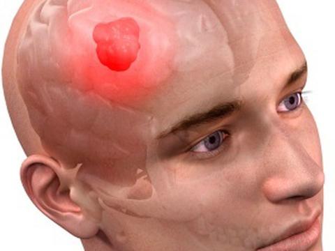 регенерация, опухоль головного мозга
