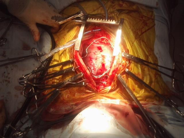 эндокардит, клапан сердца