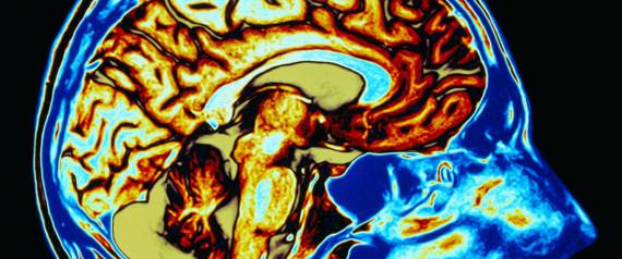 головной мозг, нравственность