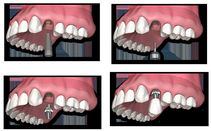 пластика челюсти, имплантация