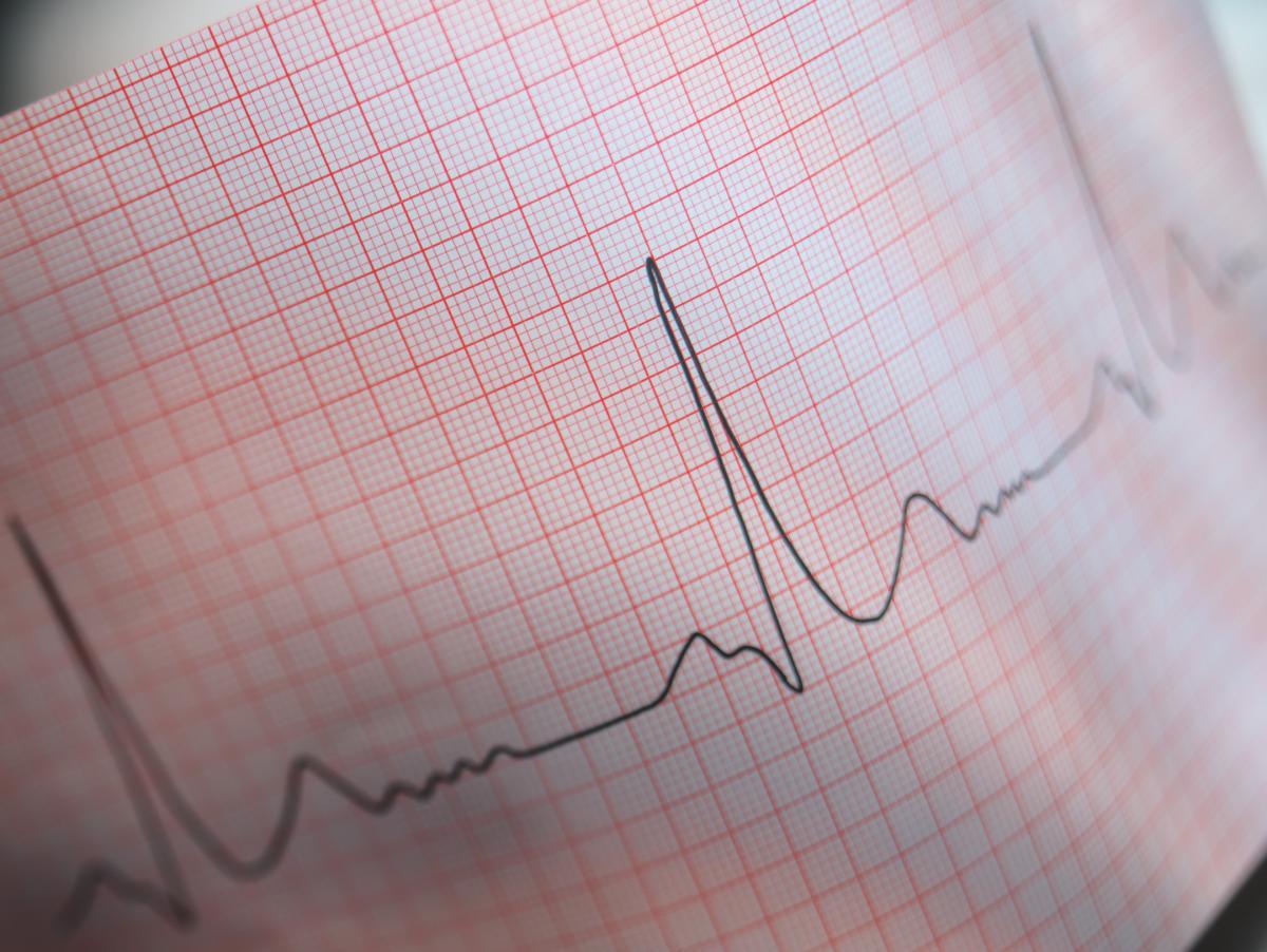 Больные с нарушением ритма сердца ведут здоровый образ жизни