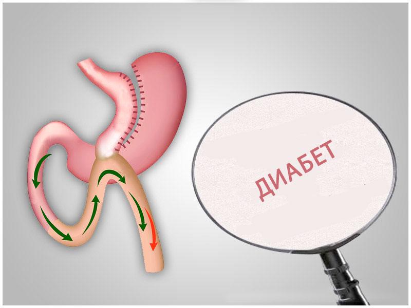 бариатрическая хирургия, сахарный диабет
