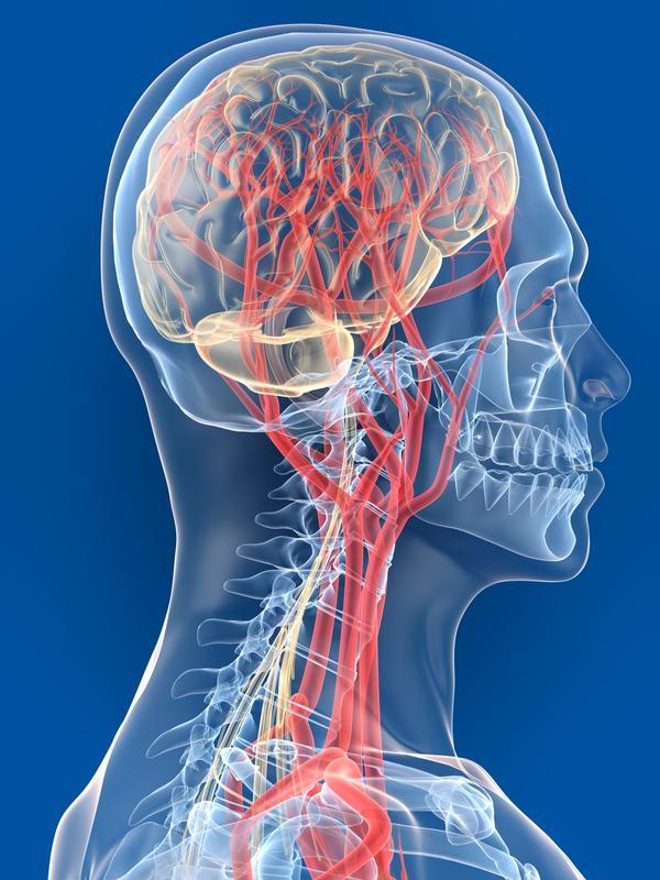 атеросклероз сосудов головного мозга, лечение атеросклероза