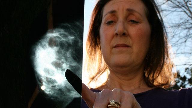 маммография, рак молочной железы