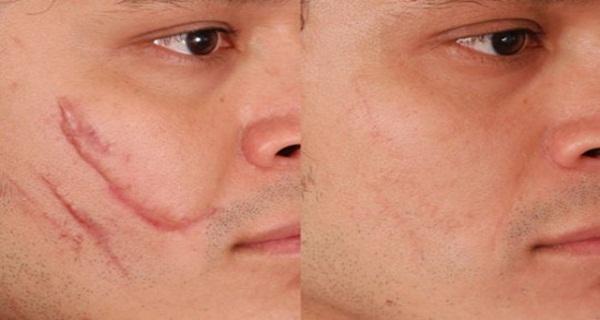 удаление шрамов