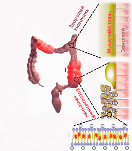 гидрогель, заболевание кишечника