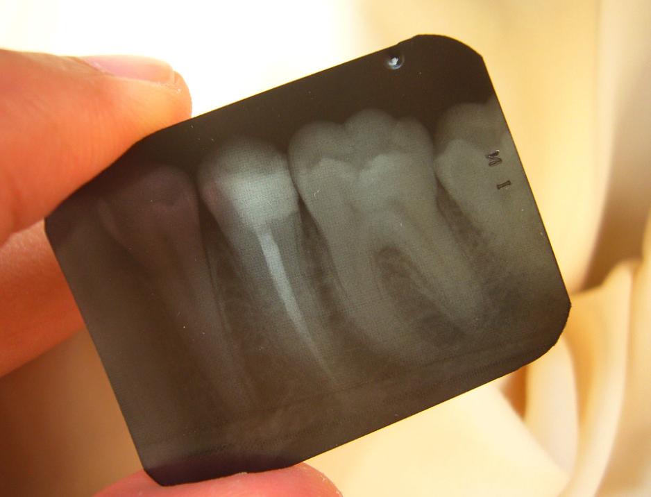 лечение пульпита, удаление зуба