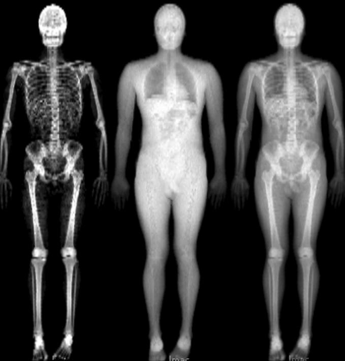 остеопороз, голод, нейроны, костная масса