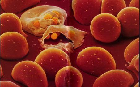 белок, малярия, рак, VAR2CSA