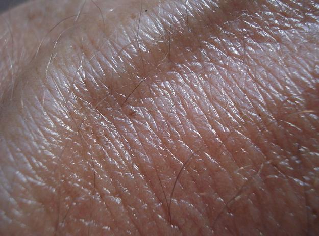 рак кожи, никатинамид, базально-клеточный рак, плоскоклеточный рак