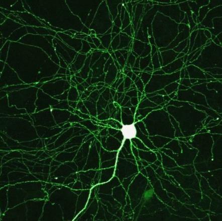 клетки, болезнь Альцгеймера