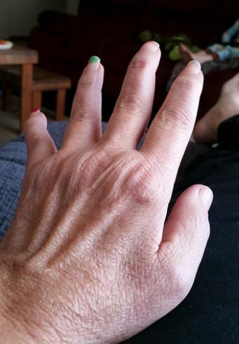 олокизумаб, ревматоидный артрит