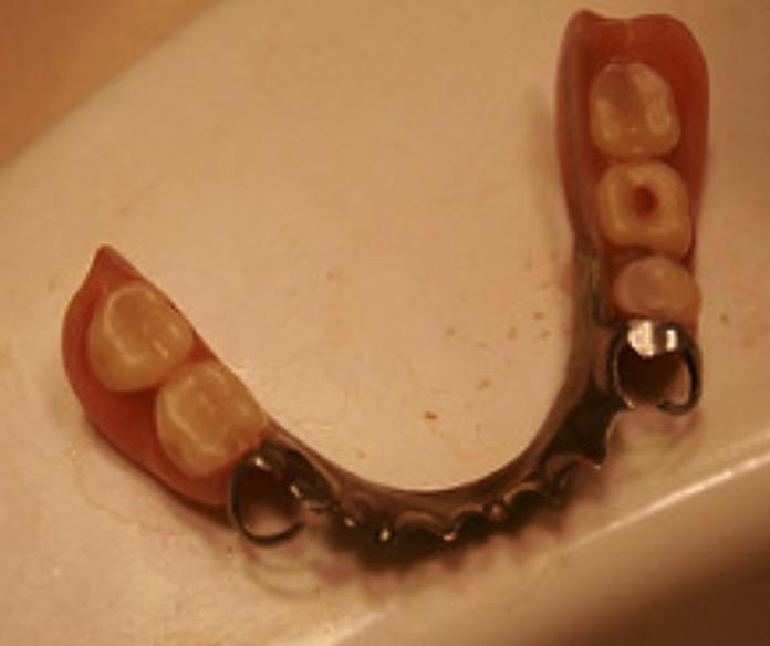 Какие зубы вставить при диабете