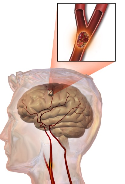 альфа-блокаторы, пожилые люди, ишемический инсульт