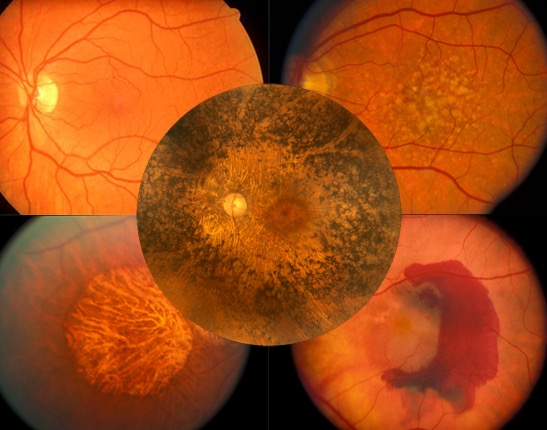 пигментный ретинит, пигментная дегенерация сетчатки, стволовые клетки