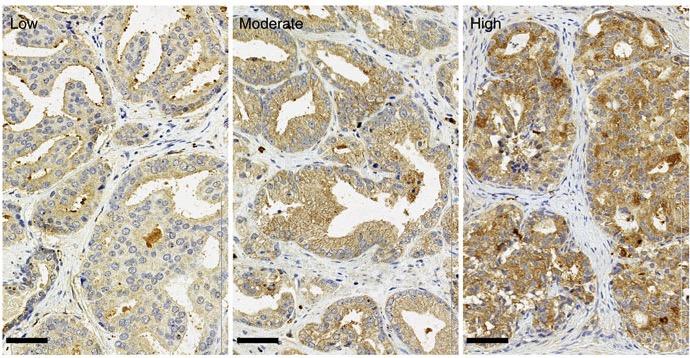 рак предстательной железы, ожирение, Nature Communications