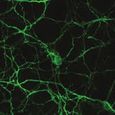 макрофаги, нервные клетки