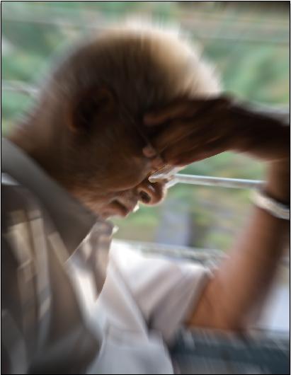 болезнь Альцгеймера, CSF1, деменция, Brain