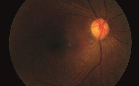 Эпилепсия, рассеянный склероз, The Lancet Neurology, фенитоин