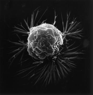 Химиотерапия, рак молочной железы, Breast Cancer Research