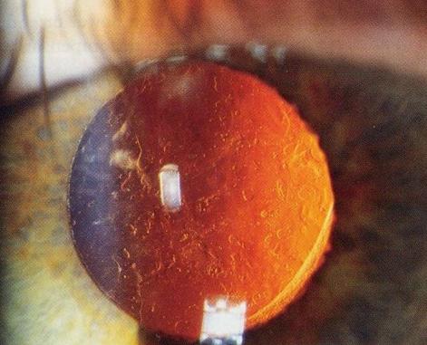 витамин С, катаракта, Ophthalmology